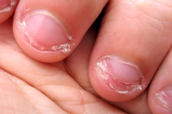 is nail-biting dangerous